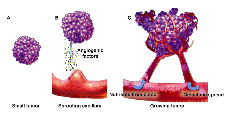 The development of new vessels in tumor angiogenesis